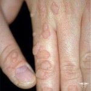 Вірус папіломи людини: симптоми, лікування і фото