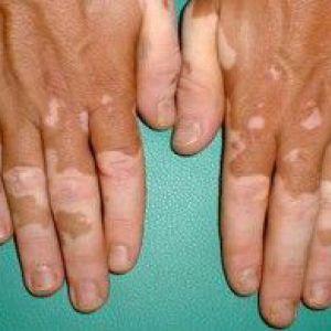 Вітіліго: причини виникнення та симптоми