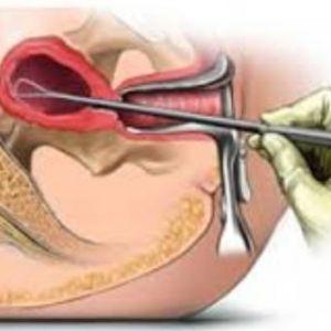 Прояв болю в матці при сексі: причини, форми і лікування діспареуніі